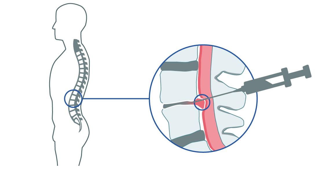 Implante de Hernia de Disco