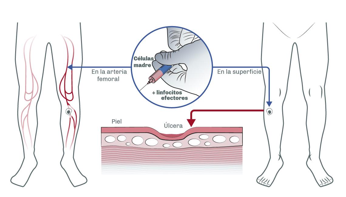 [:es]Implante células[:]