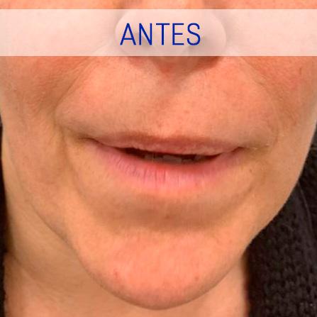 Rejuvenecimiento Facial - Boca - Antes