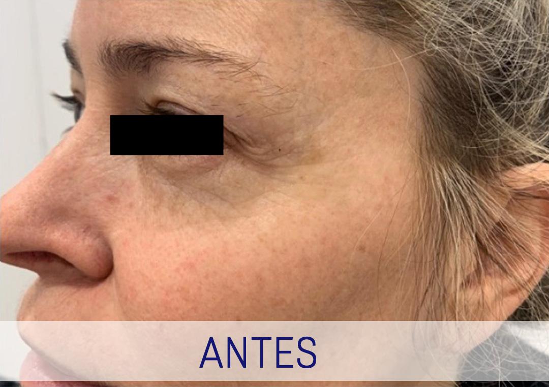 Rejuvenecimiento Facial - Ojos
